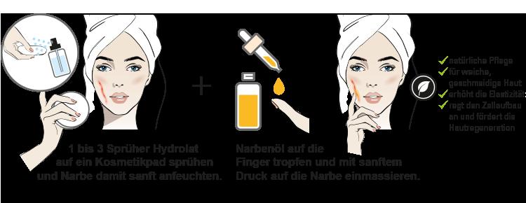 Grafik Narbenpflege
