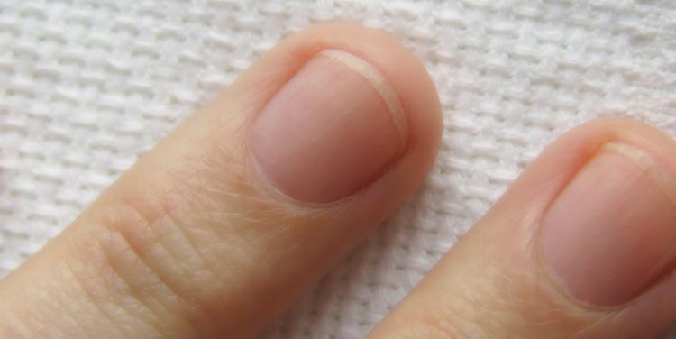Fingernägel dicke Dicke Zehennägel: