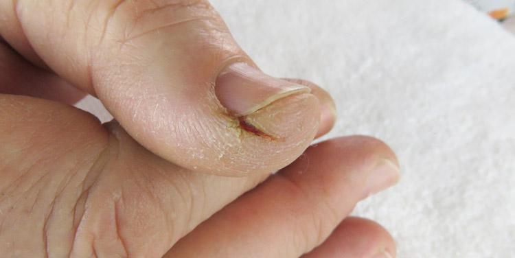 Haut schält sich fingerspitzen Baby's Haut